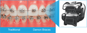 lakewood-littleton-damon-braces-comparison
