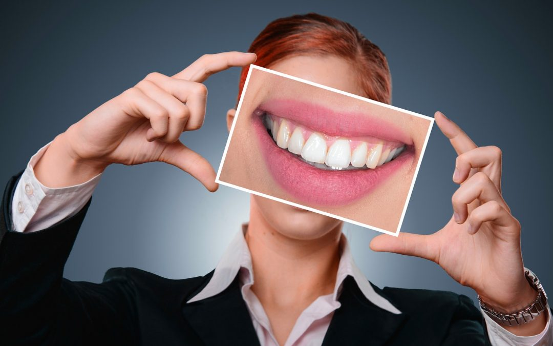 5 Teeth Whitening Options that Will Make You Smile Big at Holiday Cameras!